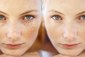 Лучшее средство для идеальной кожи.Стирает пигментный пятна